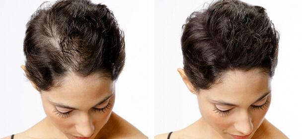 Zahuštění vlasů pomocí Tetováže top metoda