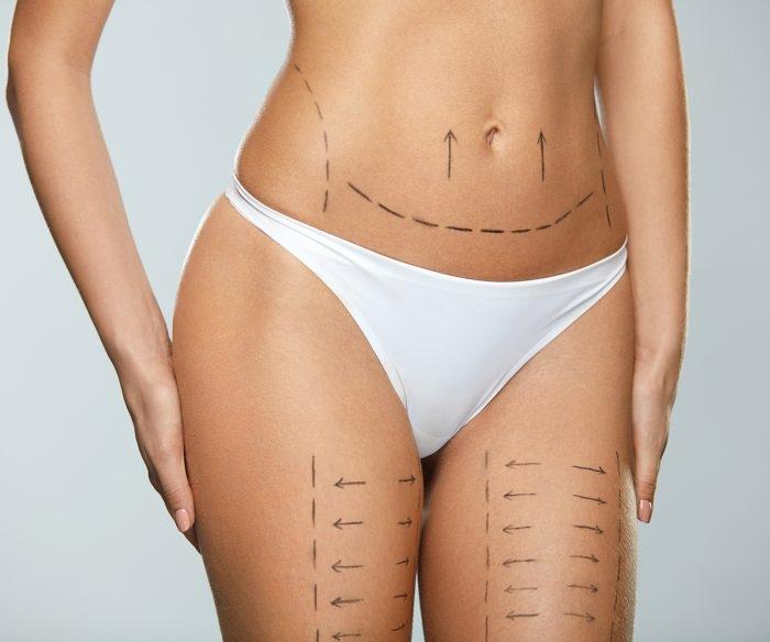 Liposukce pomocí tělové radiofrekvence
